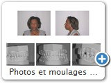 Photos et moulages de fin de traitement