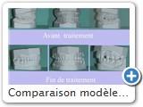 Comparaison modèles début et fin de traitement. A noter le recul de 46-47 pour la mise en place de 45.<br />la 48 a été extraite.