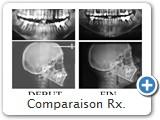 Comparaison Rx.<br /><br />L'angle I./Md. qui est de 88° au début du traitement, est de 94° en fin de traitement.<br />Cette valeur est tout à fait acceptable pour une typologie africaine.