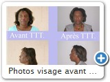 Photos visage avant et après traitement