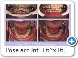 Pose arc Inf. 16*x16* thermique + collage d'anneaux chirurgicaux (31/41) en position haute,<br />reliés à l'arc par ligature métallique.<br />Le ressort Ni.Ti. utilisé est plus gros.<br />Le galbe de l'arc étant plus important, il sera mieux toléré par la patiente.