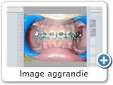 Image aggrandie