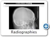 Radiographies