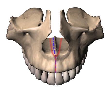 Les traits d'ostéotomie pour une disjonction