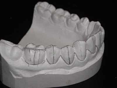 marquage au crayon des axes dentaires