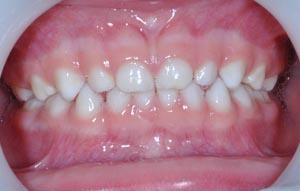 denture lacteale