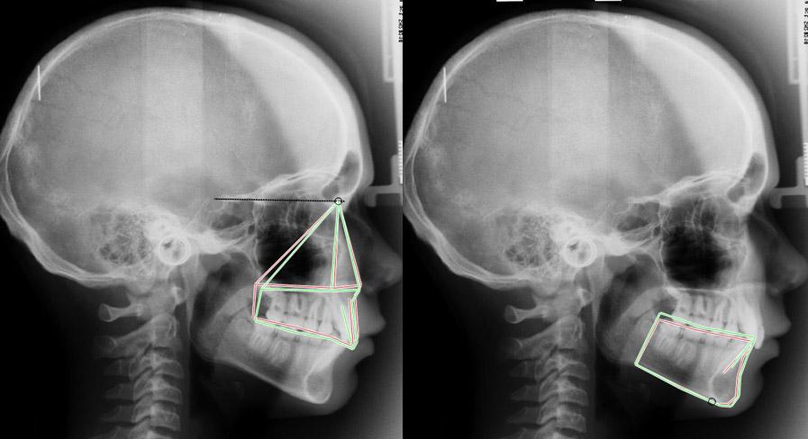 Comparaison des étages maxillaires